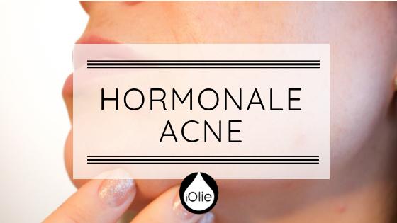 Een leven zonder hormonale acne, het kan!